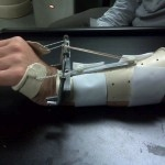 Dynamic Wrist Extension Splint